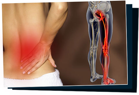 Sciatica SOS™ - OFFICIAL WEBSITE